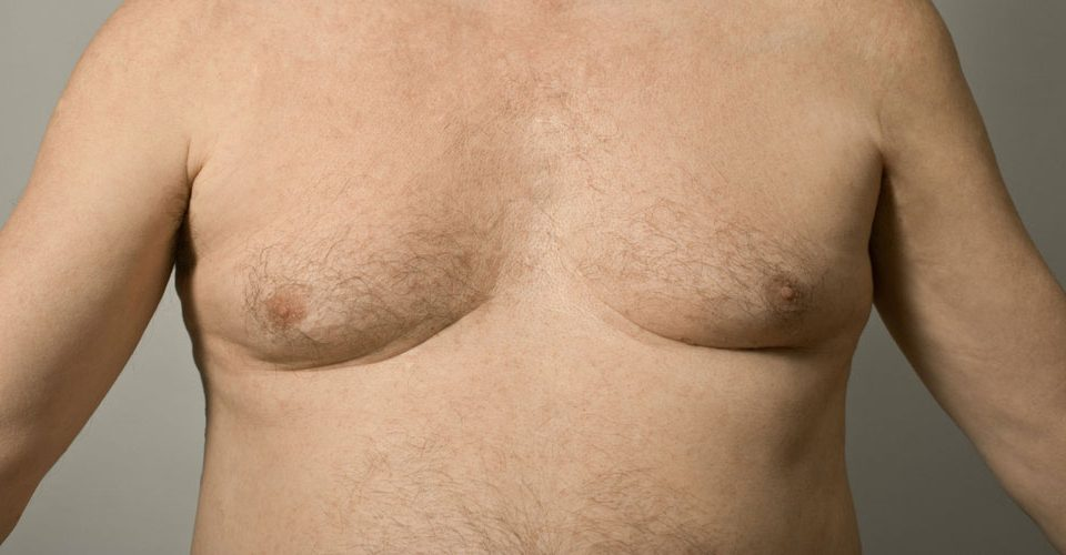 Gynecomastia is a problem which only affects men